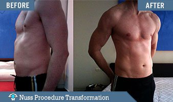 pectus excavatum surgery before and after