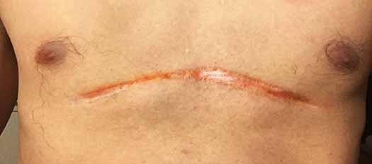 pectus excavatum surgery scar