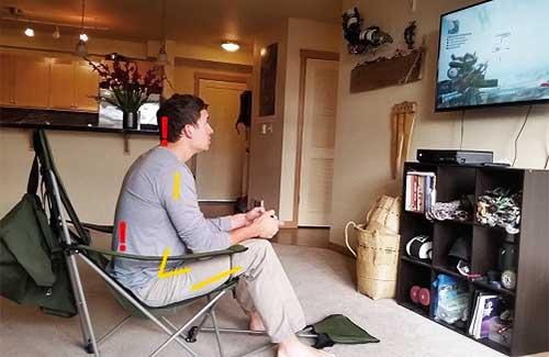 VIDEO GAMES ARE DISTRACTION FOR PECTUS EXCAVATUM SUFFERERS