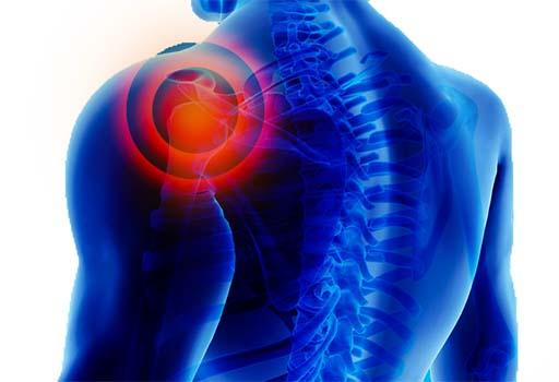 pectoralis excavatum shoulder pain