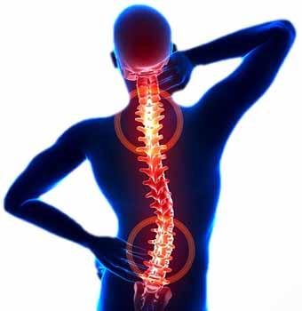 pectus excavatum back pain