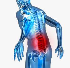 pectus excavatum lower back agony