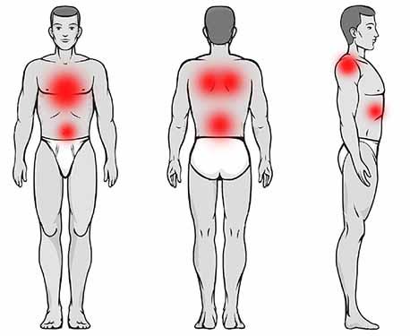 pectus excavatum pain symptoms