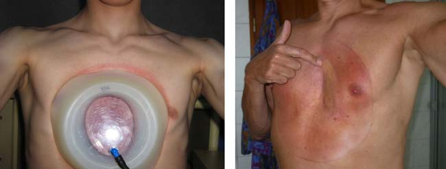 skin rashes caused by suction cup therapy