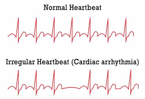 irregular heart beat and inverted chest