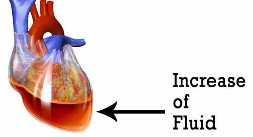 cardiac tamponade and sunken chest