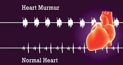 heart murmur and concave chest
